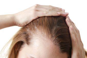 Quali sono le vere cause dell'alopecia?